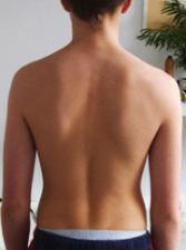 Verdrehung des Körpers /Skeletts, skoliotische Fehlhaltung